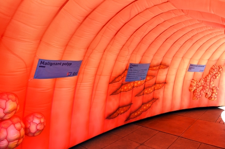 Inside the educational colon!